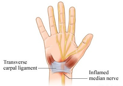 Carpal Tunnel Syndrome, physiotherapy toronto
