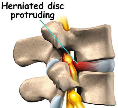 lumbar herniation, Lumbar disc bulge