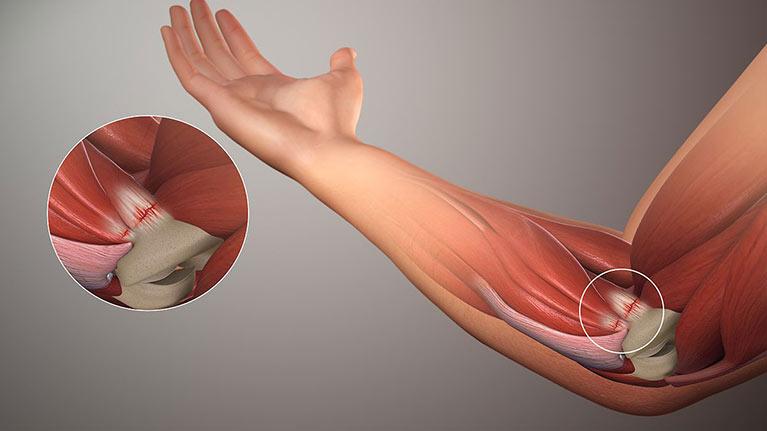golfer's elbow, anatomy, what is, physiotherapy, toronto, anatomy,