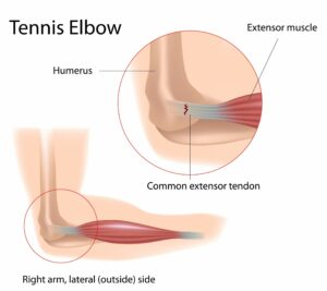 physiotherapy for tennis elbow, physiotherapy for lateral epicondylitis, tennis elbow physiotherapist, in Toronto