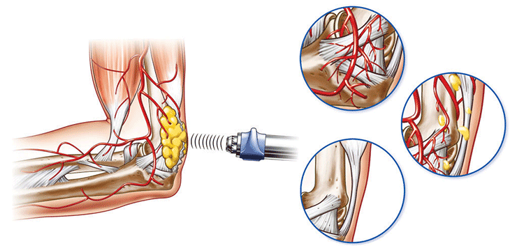 Shockwave Therapy Diagram