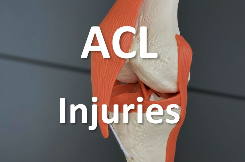 close up of anatomical model of ACL in the knee