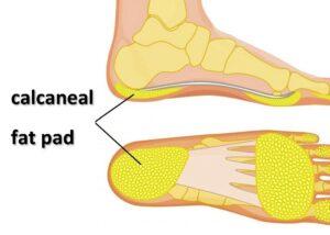 anatomical drawing of calcaneal fat pad