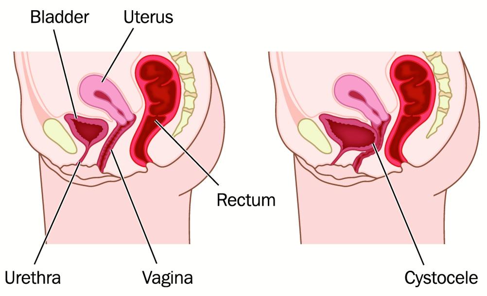 Pelvic cystocele bladder prolapse normal abnormal anatomy