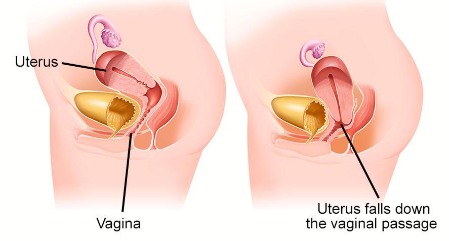 Pelvic uterine prolapse normal abnormal anatomy