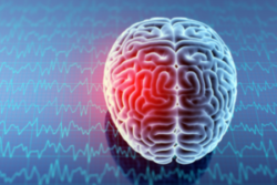 altered brain waves from injury due to post concussion syndrome mobile