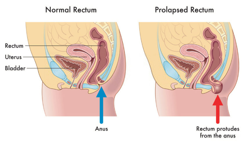 pelvic rectal prolapse anatomy normal vs abnormal