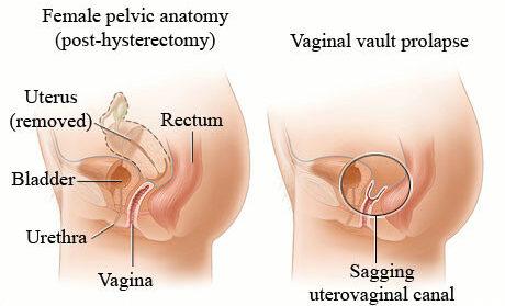 pelvic vaginal vault prolapse anatomy after hysterectomy
