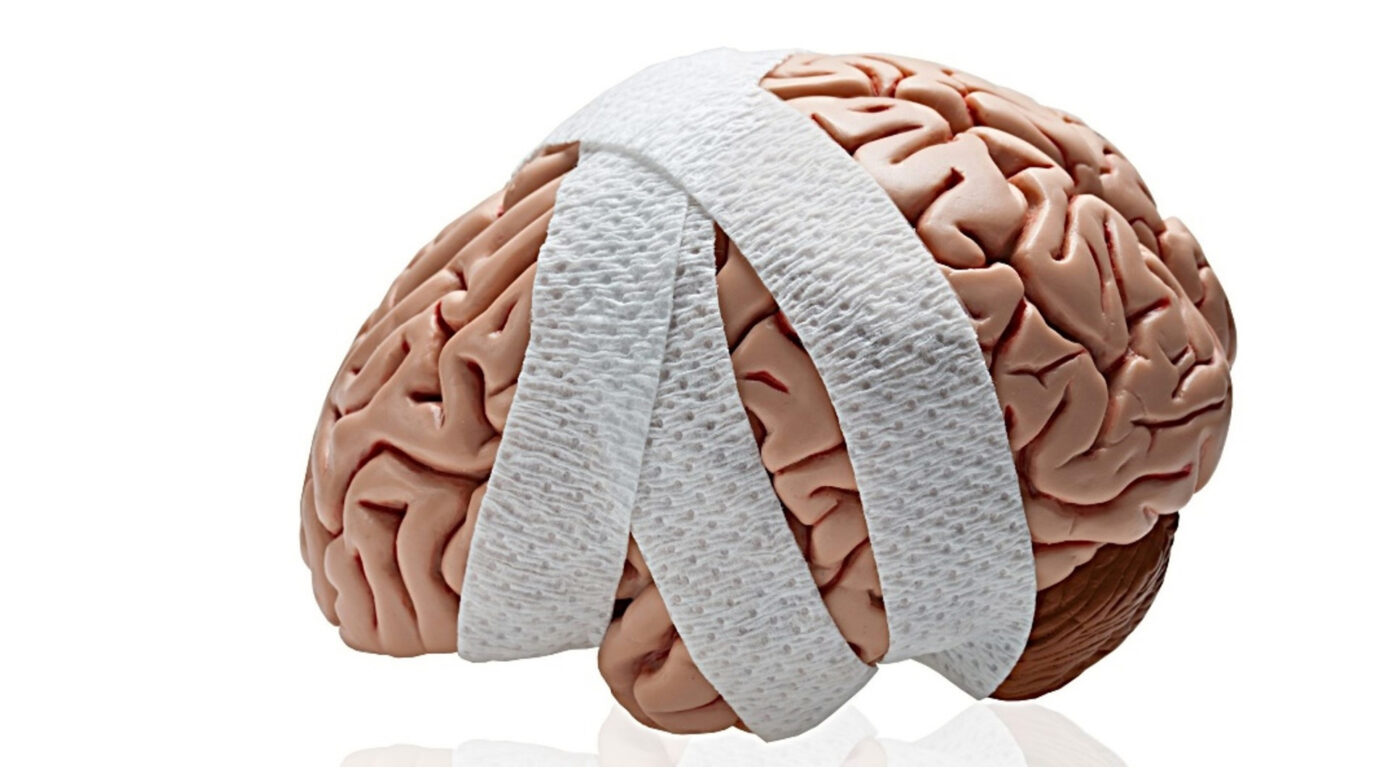 post concussion syndrome brain damaged and treated with bandage