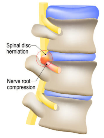 anatomy of lumbar spine in back showing a bulging disc herniation pinching a nerve root